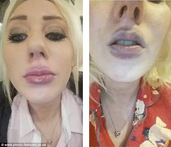 Как не стоит увеличивать себе губы