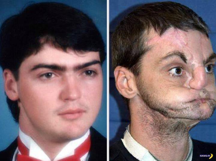 Тот самый мужчина с пересаженным лицом