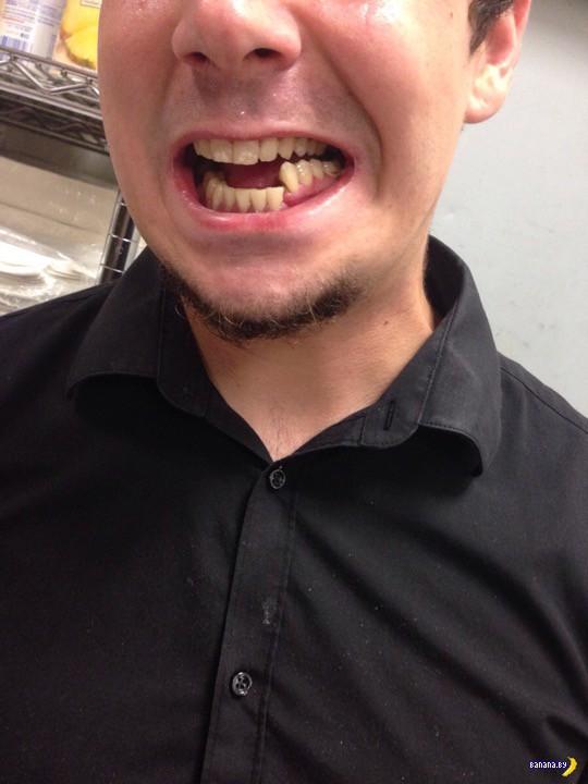 Перелом челюсти видели?