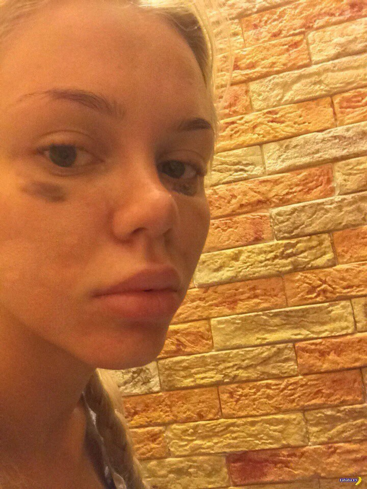 Катя Самбука сбежала от мужа из-за побоев