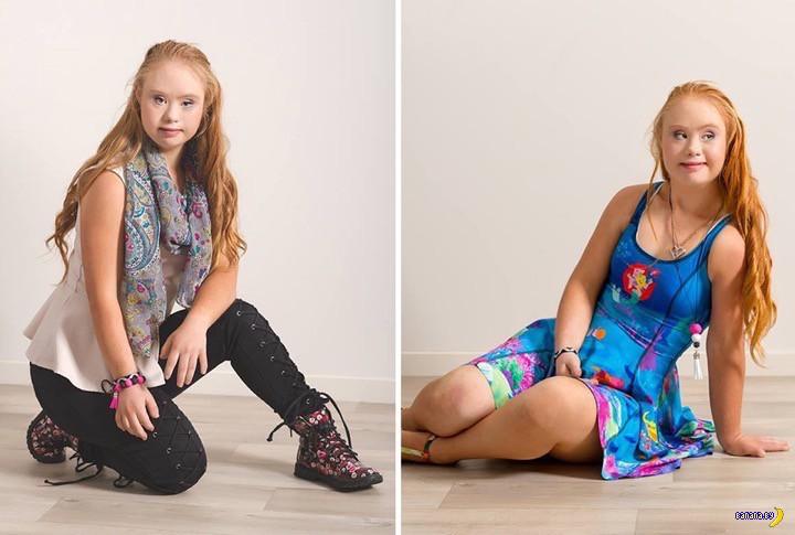 Девушка с Синдромом Дауна стала моделью