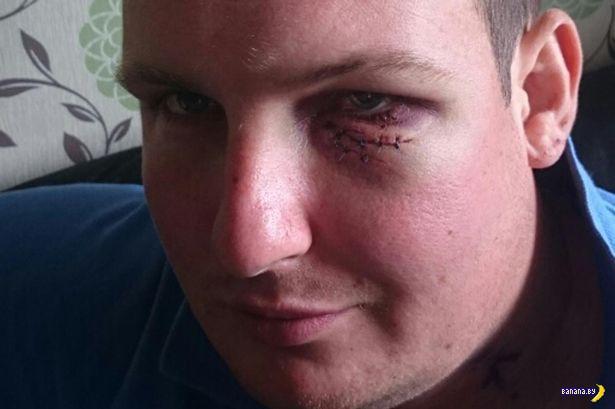 Горе-турист чуть сам себя не убил