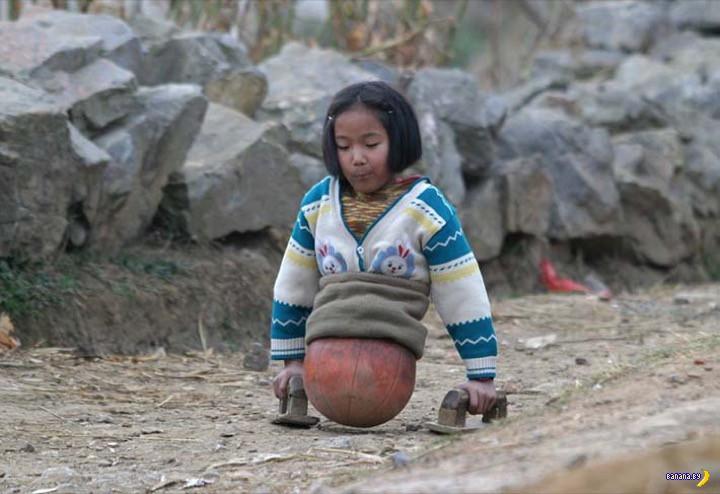 История девочки с баскетбольным мячиком