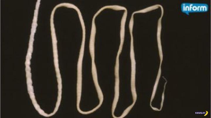 Из мозга парня достали живого ленточного червя
