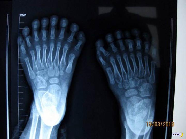 120 лет рентгеновским снимкам