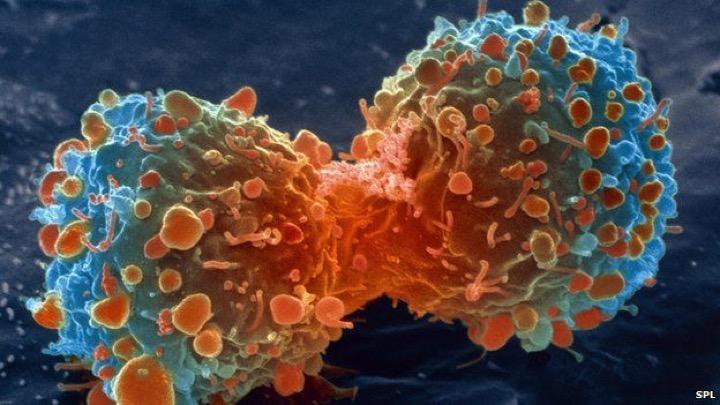 Как убивает рак?