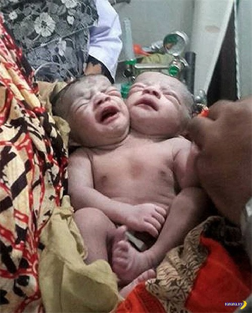 Живой ребенок с двумя головами родился в Багладеш