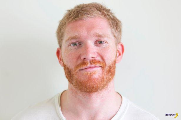 Ученые объяснили внезапную рыжую бороду