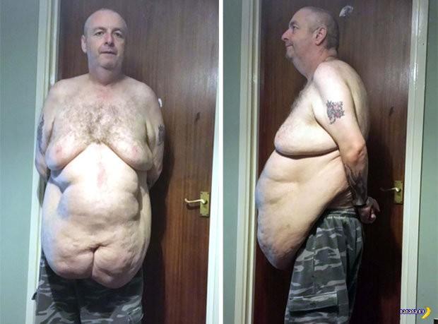 Не достаточно просто похудеть...