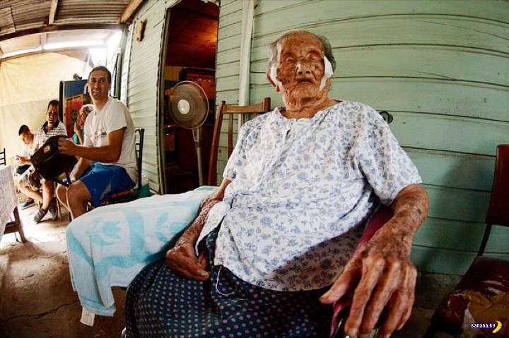 119-летняя бабуля