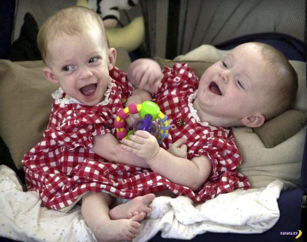 Радостная история сиамских близнецов