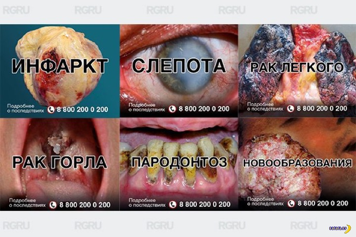 В Беларуси появятся страшные картинки на пачках с ...: http://banana.by/index.php?newsid=251665