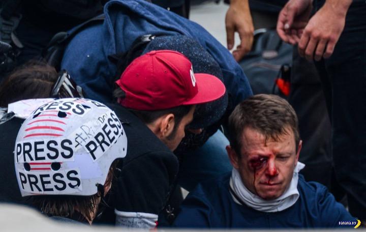 Пошел на демонстрацию и потерял глаз