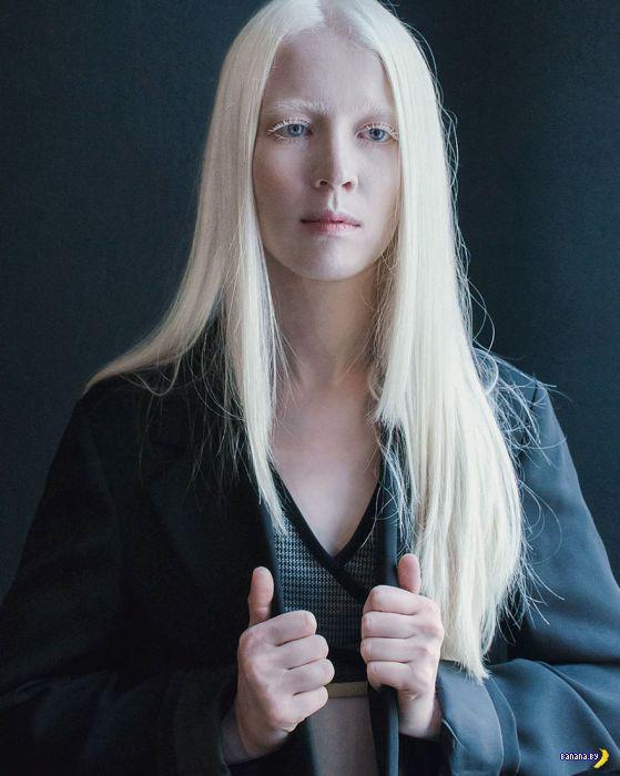 Необычная красота альбиносов
