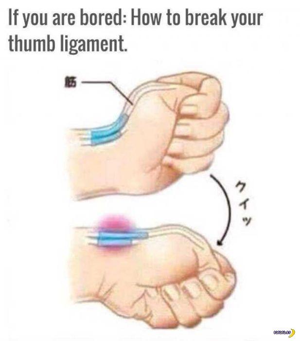 Самый дебильный challenge - вывих пальца!