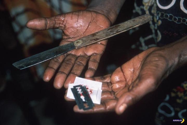 Женское обрезание: что, зачем и почему?