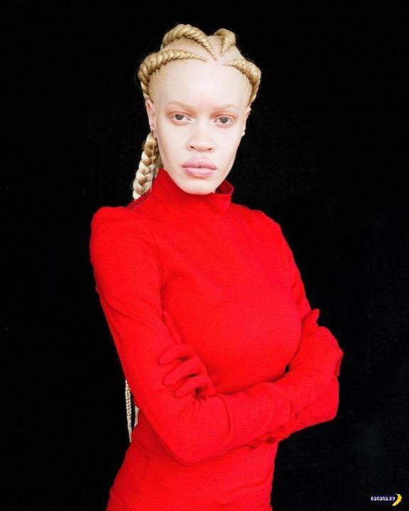 Необычная красота –модель-альбинос