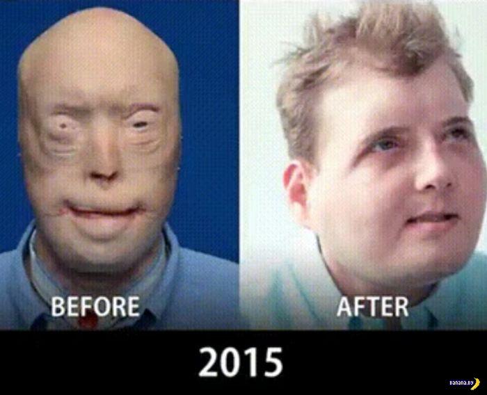 Пересадка лиц