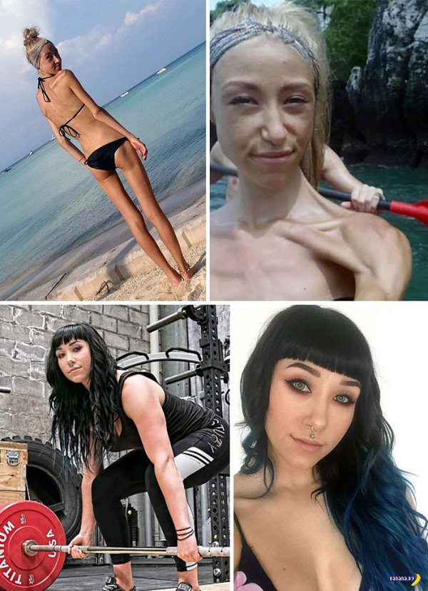 Они победили анорексию!