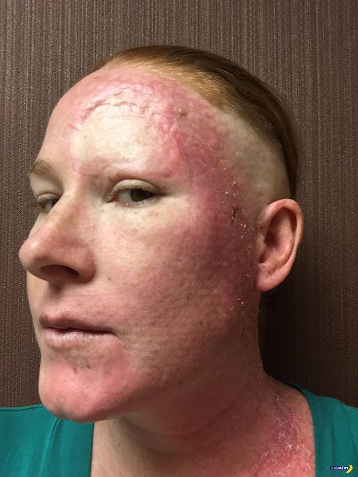 История одной победы над раком кожи