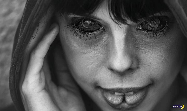 Финал истории с татуированными глазами полечки