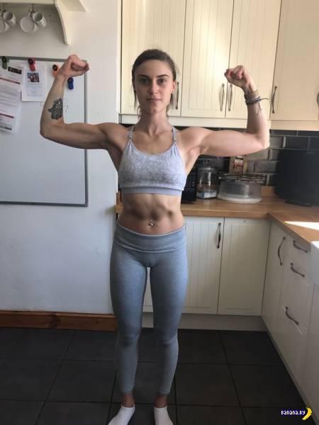История анорексии Эмили Льюис