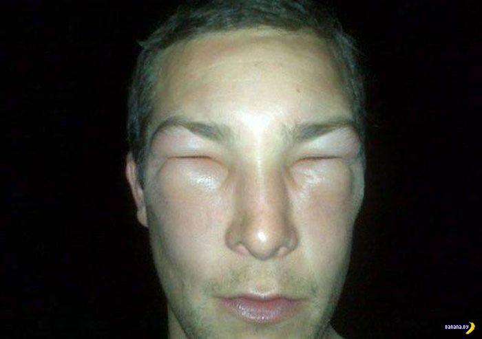 Привет, аллергия!