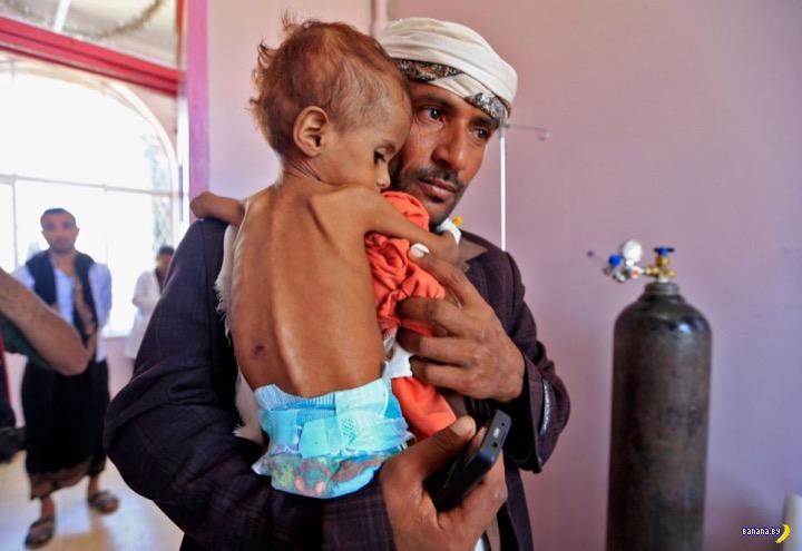 Живые скелеты из Йемена