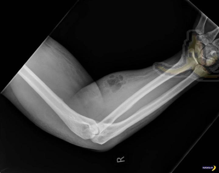 Мужик вкалывал себе в руку свою сперму