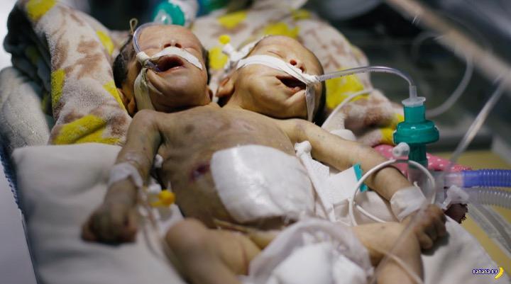 В Йемене умерли сиамские близнецы