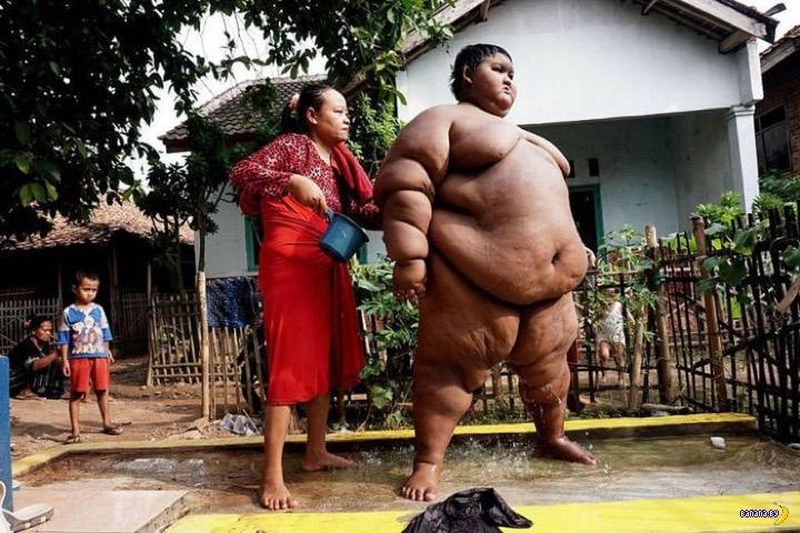 Самый толстый в мире мальчик сильно похудел