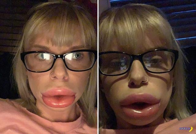 Что может сотворить крем для увеличения губ