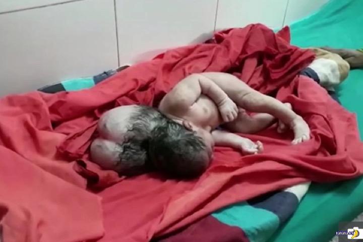 Девочка с тремя головами родилась в Индии