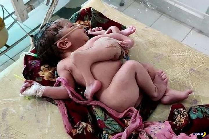 Два комплекта рук и ног у младенца