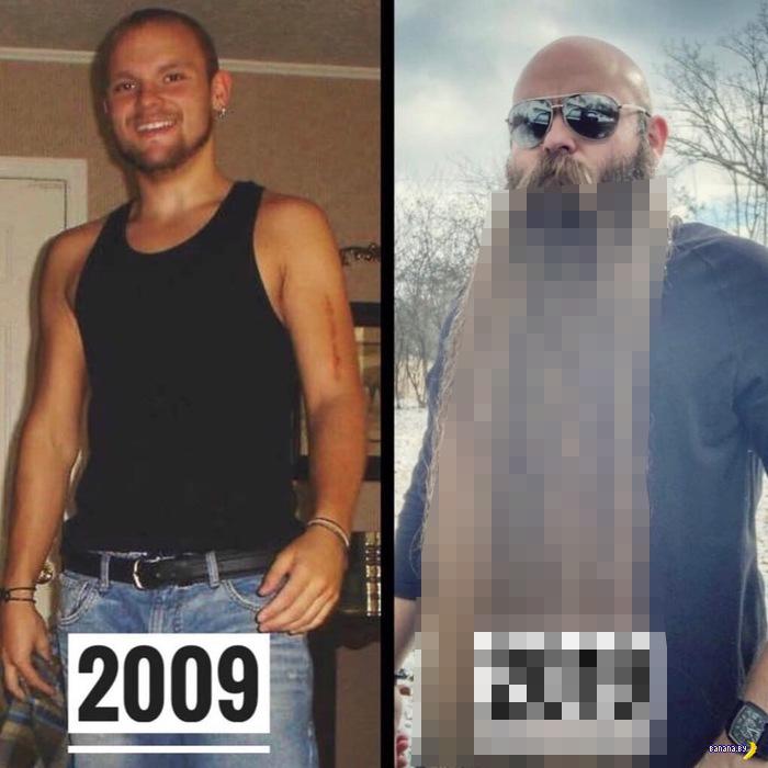 Парень 10 лет не брился