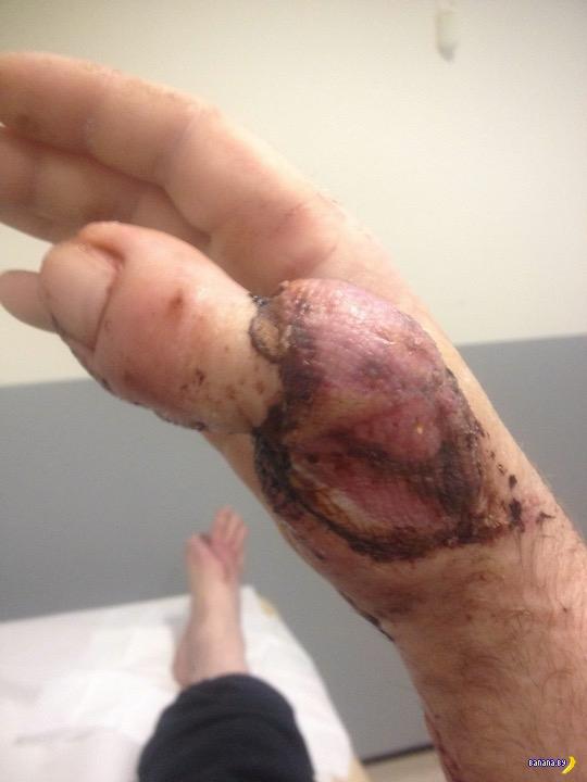 Пришили на руку палец с ноги
