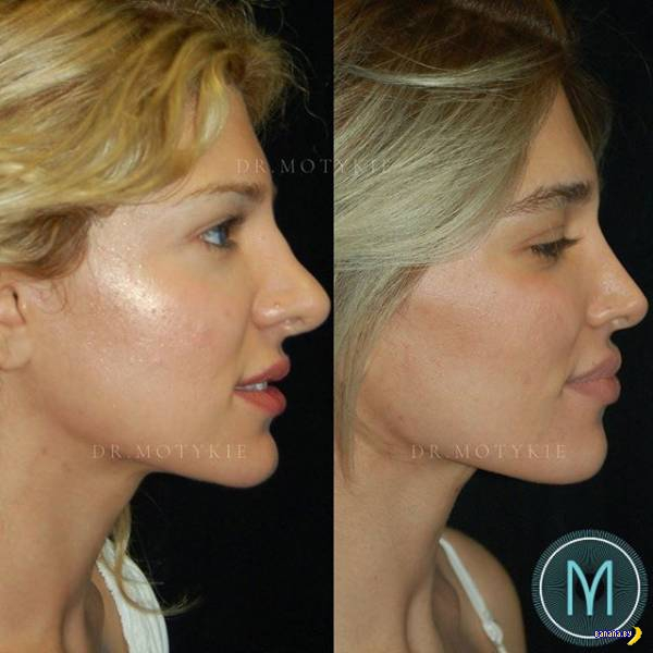 Переделка носов