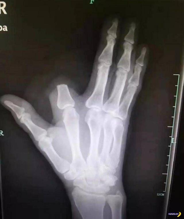 История одного китайского пальца