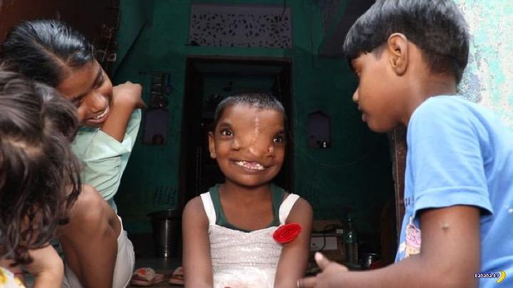 В Индии прооперировали девочку с хоботом