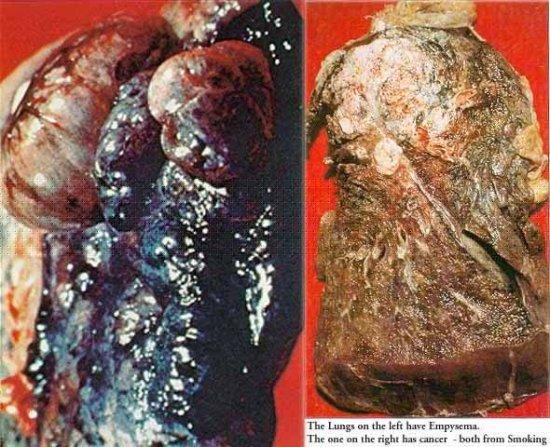 Фотографии легких курящего человека. Жесть.