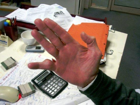 Сломал палец