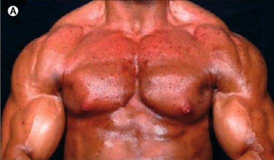 Большие мышцы, упорные тренировки, стеройды